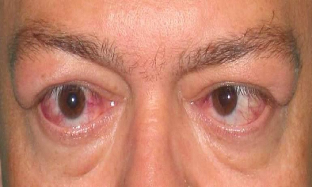 Thyroid Eye Disease