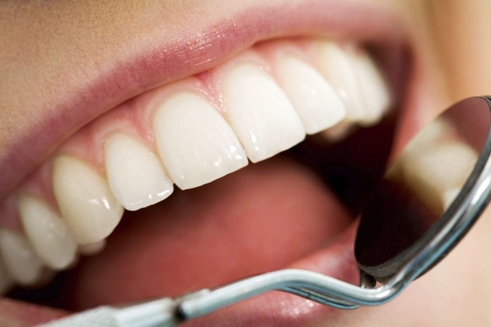 Basics of dental care