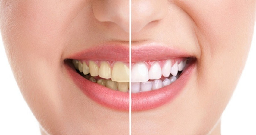 Methods of teeth whitening